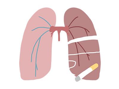 肺癌早期症状 肺癌有哪些早期症状