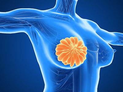 乳腺增生怎么治最好 乳腺增生如何能治好